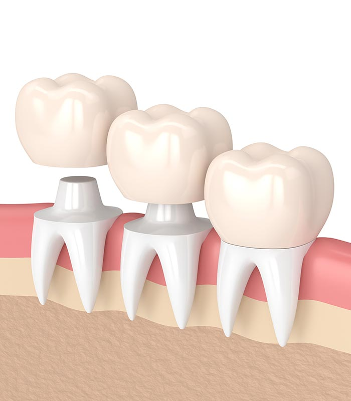 Dental-crowns-Mornington